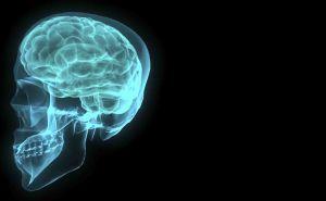 Brain Skull X-Ray